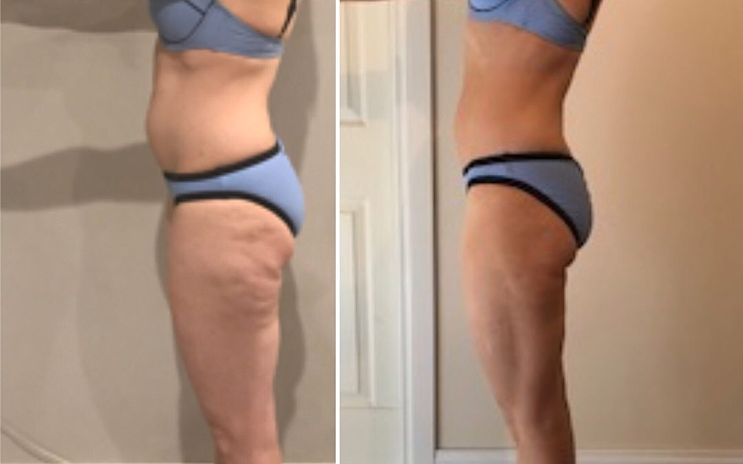 BEFORE & AFTER – 4 week challenge